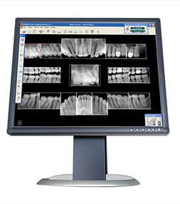 Dental X-Rays Colmar PA