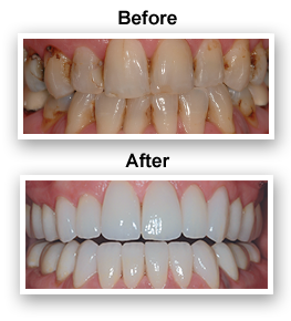 Teeth Whitening Dentist Colmar PA